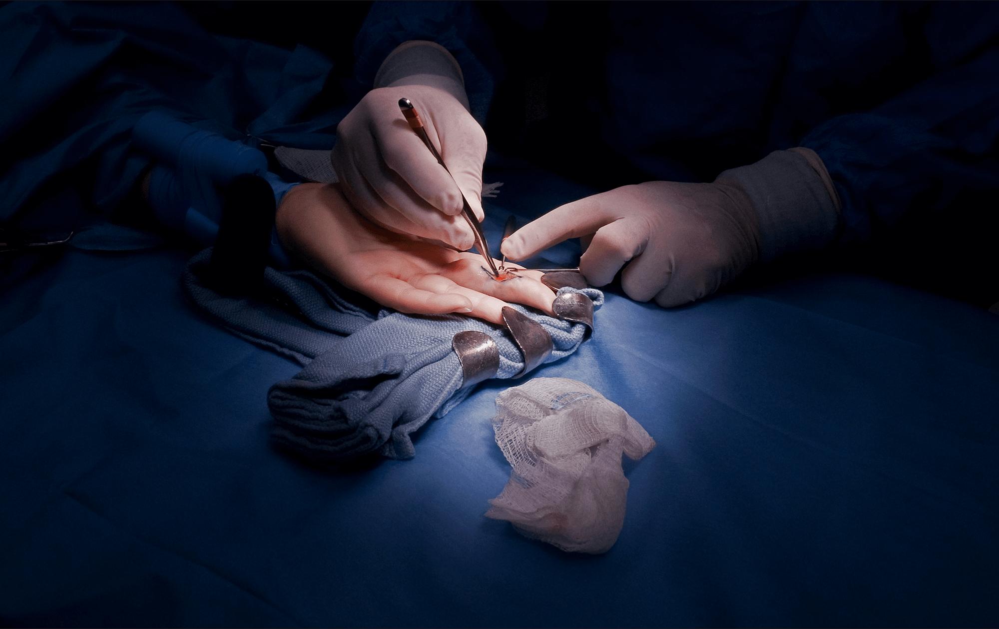 Hand Surgery